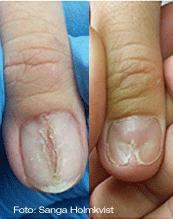 bilder på sjuka naglar