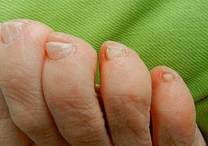 tappa nagel nagelsvamp